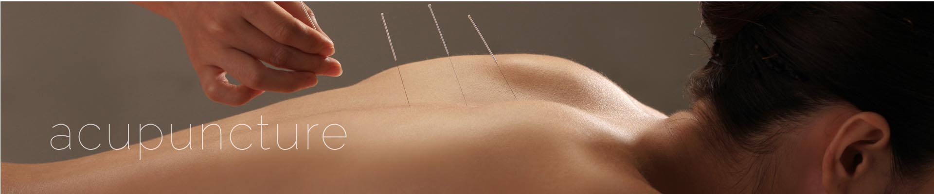 Acupuncture Special Offers
