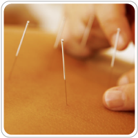 acupuncture, cupping, shiatsu, chronic pain relief, improve energy flow